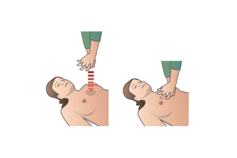 Finns det risker med att göra bröstkompressioner vid HLR