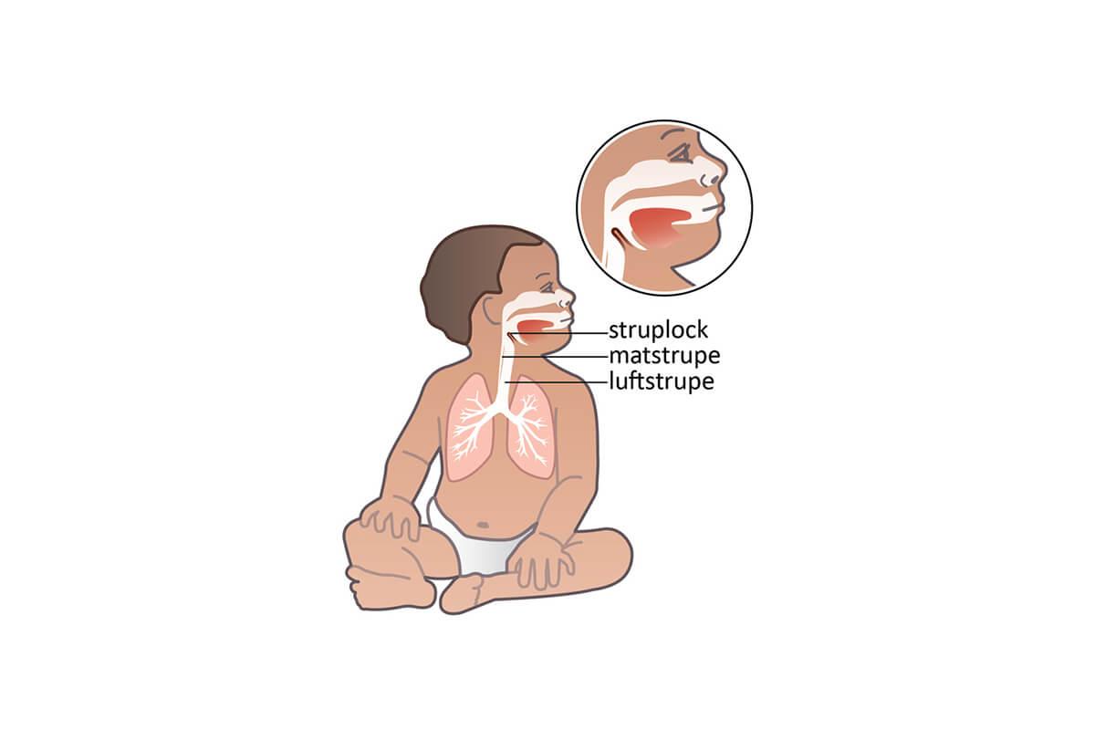 Kan lungorna explodera om jag gör för hård inblåsning vid HLR?