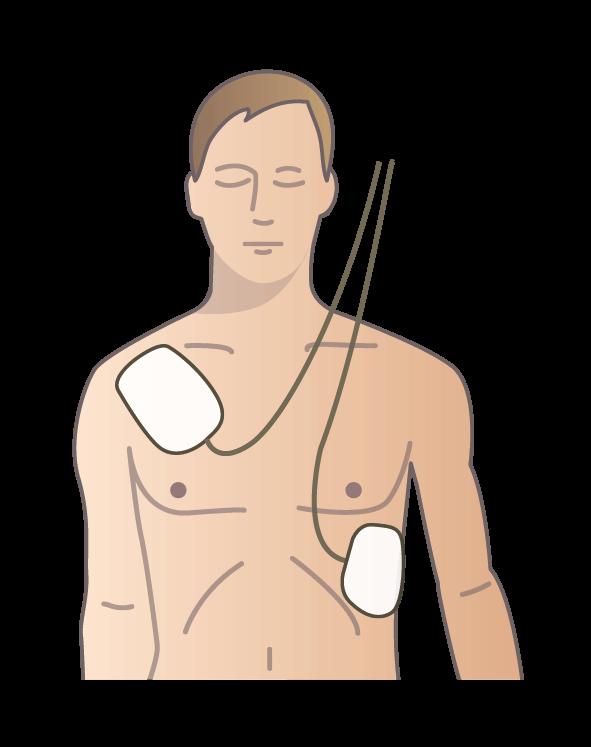 Så fäster du elektroderna från hjärtstartaren på bröstkorgen på en vuxen person
