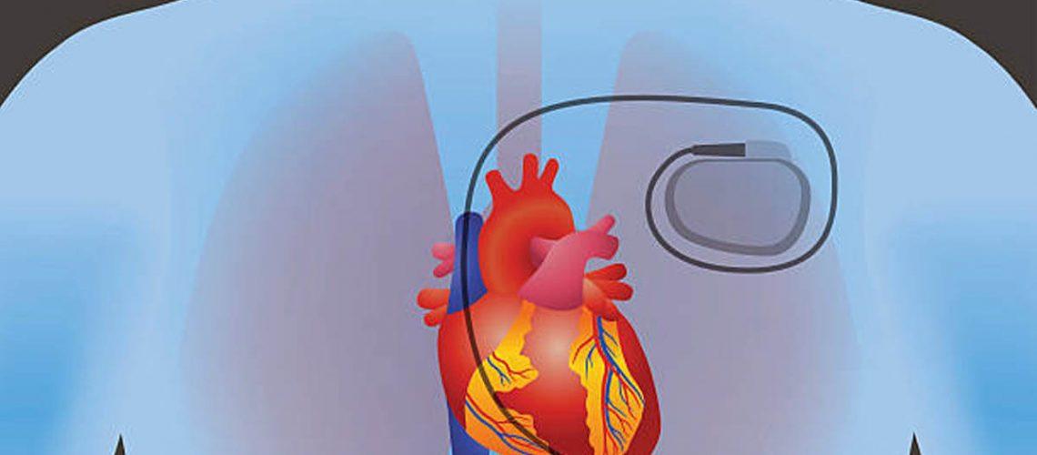 Hur gör du HLR på en person med pacemaker eller ICD (implanterbar defibrillator)?