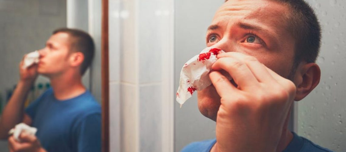 on blöder näsblod - barn och vuxna